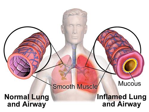 Viêm phế quản co thắt là một dạng viêm phế quản xảy ra khi niêm mạc phế quản bị viêm, dẫn tới tình trạng sưng phế quản