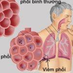 Bạn biết gì về bệnh viêm phổi?