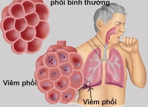 Viêm phổi là hiện tượng nhiễm khuẩn ở vùng nhu môi phổi, viêm ở các túi phế nang, ống phế nang