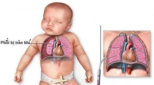 Tràn khí màng phổi là một trong những biến chứng thường gặp khi bị bệnh phổi tắc nghẽn mạn tính