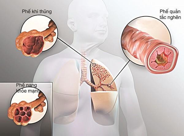Bệnh phổi tắc nghẽn mạn tính có thể gây nên nhiều biến chứng nguy hiểm