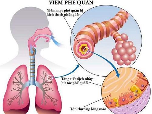Viêm phế quản cấp thường do nhiễm trùng đường hô hấp trên do các vi khuẩn hoặc sau khi mắc các bệnh: cúm, sởi, ho gà.