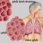Các bệnh lây qua đường hô hấp dễ mắc