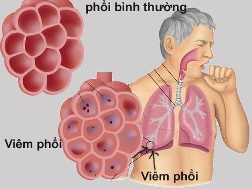 Viêm phổi, viêm phế quản...là những bệnh lý dễ lây qua đường hô hấp, ảnh hưởng nghiêm trọng tới sức khỏe