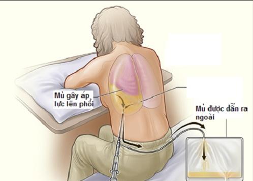 Người bệnh còn dễ mắc áp xe phổi, tràn dịch màng phổi...gây nguy hiểm tới tính mạng nếu không phát hiện và điều trị sớm