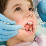 Chăm sóc bé sau nhổ răng