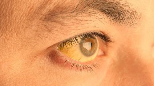 Vàng da là tình trạng da và lòng trắng của mắt trở nên vàng và bạc màu.