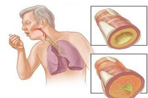 Lao phổi là bệnh nguy hiểm và có tốc độ lây lan nhanh chóng