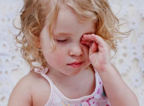 Dị ứng cũng là một trong số những nguyên nhân khiến trẻ bị sưng mí mắt