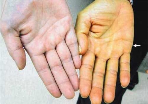 Nhìn chung các dấu hiệu cảnh báo men gan có bất thường là vàng da (da và lòng trắng mắt chuyển màu vàng), nước tiểu sẫm màu phân màu đất sét, tích tụ dịch ở bụng gọi là cổ trướng, xuất huyết đường ruột, giảm cân.