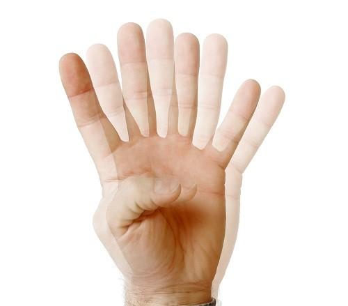 Nhìn đôi hay song thị là tình trạng mắt nhìn thấy một vật thành hai.
