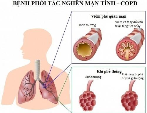 Việc nhận biết phổi tắc nghẽn mạn tính sớm có ý nghĩa quyết định đến việc điều trị và chất lượng cuộc sống của người bệnh
