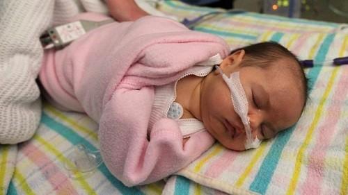 Sau khi sinh khoảng vài phút hoặc vài giờ trẻ xuất hiện hội chứng suy hô hấp nặng mà không tìm thấy các nguyên nhân
