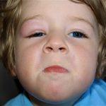 Trẻ bị sưng mí mắt