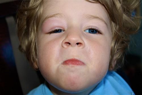 Trẻ bị sưng mí mắt thường là do chấn thương, nhiễm trùng và dị ứng.