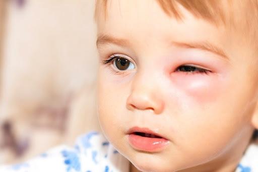 Viêm mô tế bào là một trong những bệnh lý gây nên hiện tượng sưng mí mắt ở trẻ