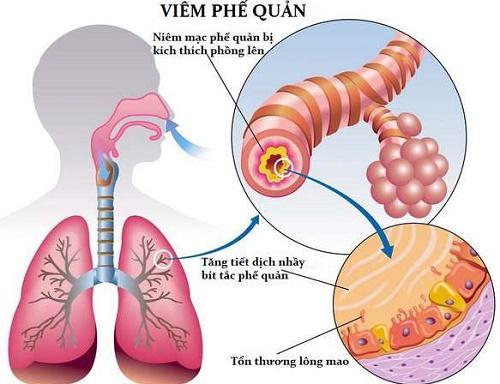 Viêm phế quản cấp là bệnh lý về đường hô hấp do nhiều nguyên nhân gây ra
