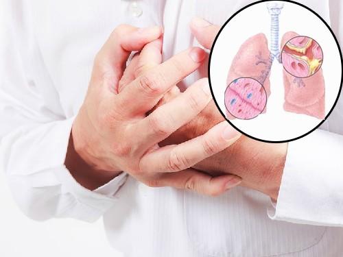 Triệu chứng của viêm phế quản mạn tính thường là ho, khó thở, đau tức ngực