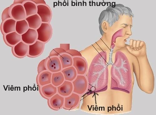 Viêm phổi cấp tính là bệnh lý về đường hô hấp do nhiều nguyên nhân gây ra như vi khuẩn, virus...
