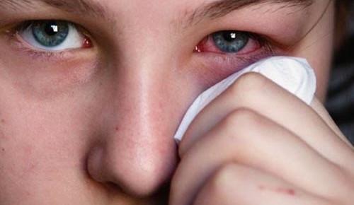Viêm xoang không điều trị kịp thời có thể dẫn đến nhiều biến chứng nguy hiểm về mắt