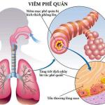 Bạn biết gì về bệnh viêm phế quản?