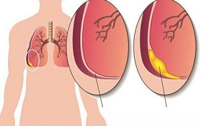 Bệnh phổi có nước là gì?