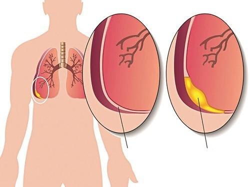 Bệnh phổi có nước thường được chỉ hội chứng tràn dịch màng phổi.