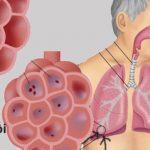 Các phương pháp điều trị viêm phổi do virus thường dùng