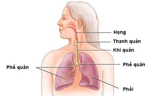 Hẹp thanh quản là tình trạng dòng khí bị gián đoạn ở cổ do sự tắc nghẽ ở thanh quản hoặc khí quản, từ đó gây ra âm thanh thở rít, khò khè khi thở ra