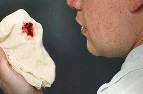 Ho ra máu thực sự là tình trạng khạc ra máu khi cố gắng sức ho, máu thường có bọt, màu đỏ tươi.