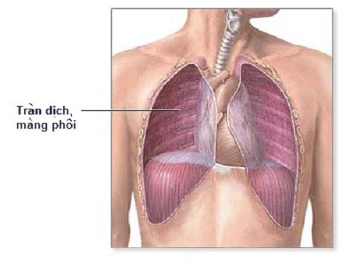 Tràn dịch màng phổi là tình trạng tích tụ dịch trong khoang trống giữa phổi và thành ngực.