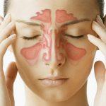 Những hiểu lầm thường gặp về bệnh viêm xoang