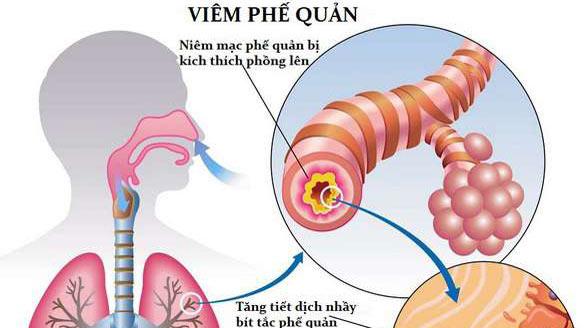 viêm phế quản (các ống đưa không khí tới phổi) có thể gây ra các rối loạn giấc ngủ.