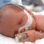 Suy hô hấp ở trẻ sinh non