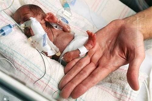 Suy hô hấp ở trẻ sinh non rất nguy hiểm cho tính mạng của trẻ nên cần được chẩn đoán sớm và can thiệp kịp thời.