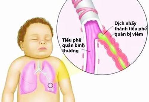 Bệnh viêm tiểu phế quản hay xảy ra ở trẻ dưới 24 tháng tuổi, thường gặp nhất là 3 - 6 tháng tuổi.