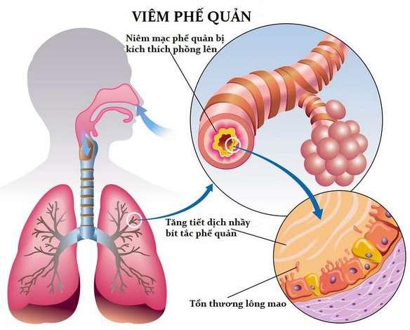 Viêm phế quản cấp tính là bệnh thường gặp ở phế quản