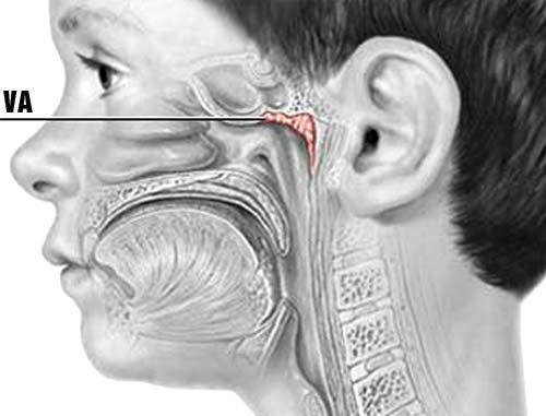 VA là một tổ chức lympho nằm ở vòm mũi họng gần cửa mũi sau thuộc vòng bạch huyết . Vòng bạch huyết này gồm có 6 amidan tạo thành, trong đó có amidan vòm họng gọi là VA.