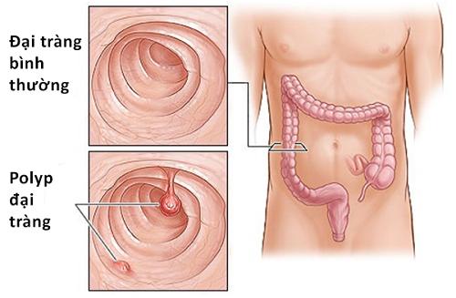 Polyp đại tràng cần được điều trị đúng cách