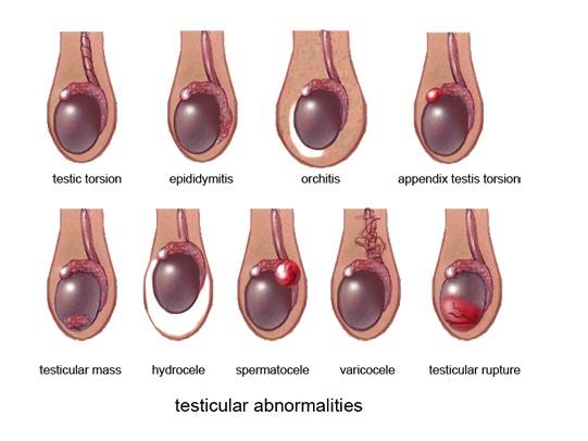 Giãn tĩnh mạch thừng tinh cần được phát hiện sớm và điều trị kịp thời hiệu quả