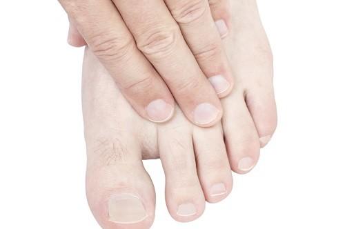 Nguyên nhân gây tê ngón chân cái