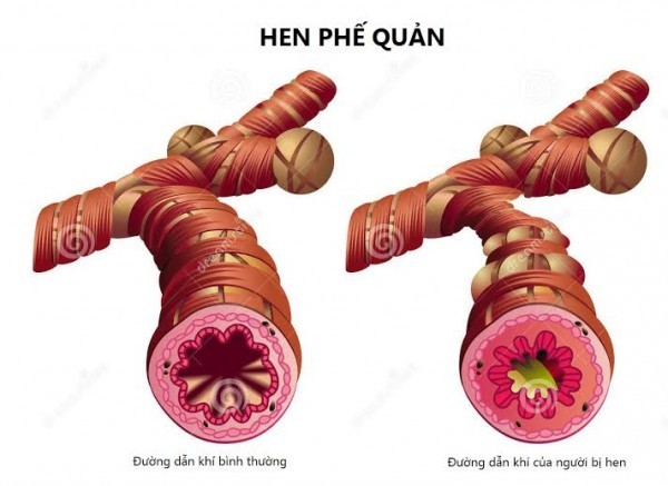Hen phế quản (bệnh suyễn) là tình trạng viêm nhiễm mạn tính ở đường hô hấp, dẫn đến khó thở từng cơn do sự co thắt của phế quản.