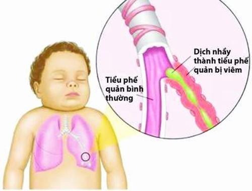 Nguyên nhân gây viêm phế quản co thắt ở trẻ có thể do vi khuẩn, virus, ký sinh trùng, hóa chất, mắc dị vật,