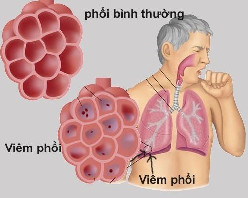 Viêm phổi là tình trạng viêm các phế nang trong phổi do một tổn thương như nhiễm trùng.