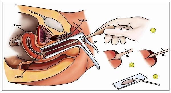 Xét nghiệm pap smear cần thiết để chẩn đoán bệnh lý phụ khoa