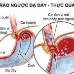 6 nguyên nhân gây trào ngược dạ dày thực quản