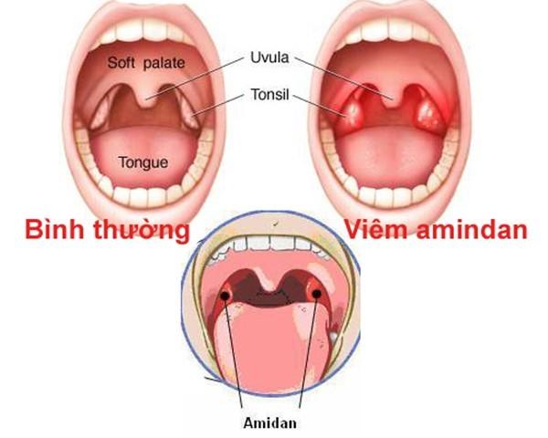 Viêm amidan là những tổn thương cấp hoặc mãn tính ở bộ phận amidan có thể do vi khuẩn hoặc virus gây ra