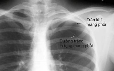 Biến chứng nguy hiểm của tràn khí màng phổi