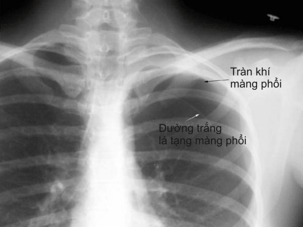 Tràn khí màng phổi là hiện tượng không khí tràn vào khoang màng phổi tách lá thành và lá tạng ra tạo một khoang chứa khí