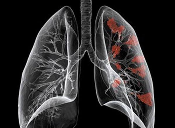 Chụp CT phổi là kỹ thuật chẩn đoán các bệnh lý ở phổi hiệu quả